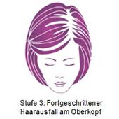 pds_regaine_frauenloesung_stufe3.jpg