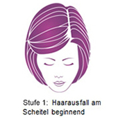 pds_regaine_frauenschaum_stufe1.jpg