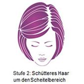 pds_regaine_frauenschaum_stufe2.jpg