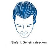 pds_regaine_maennerschaum_stufe1.jpg